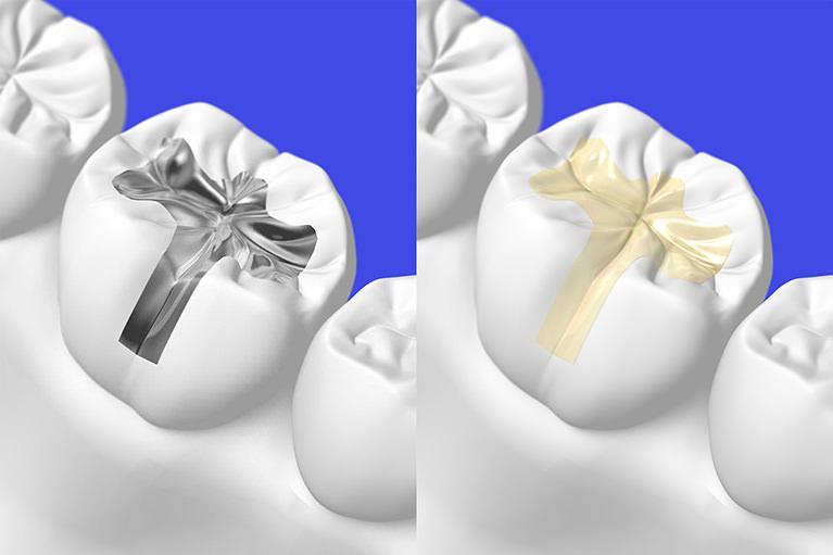 「白くて美しい歯」を始めてみませんか?